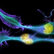 Alterações em gene de síndrome ligada ao TEA, podem ter efeitos mais leves que deleções - Síndrome de Phelan-McDermid - Tismoo